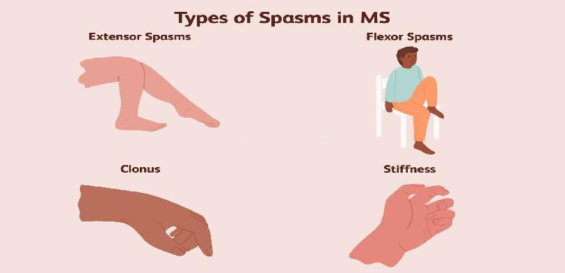 Types of muscle spasm
